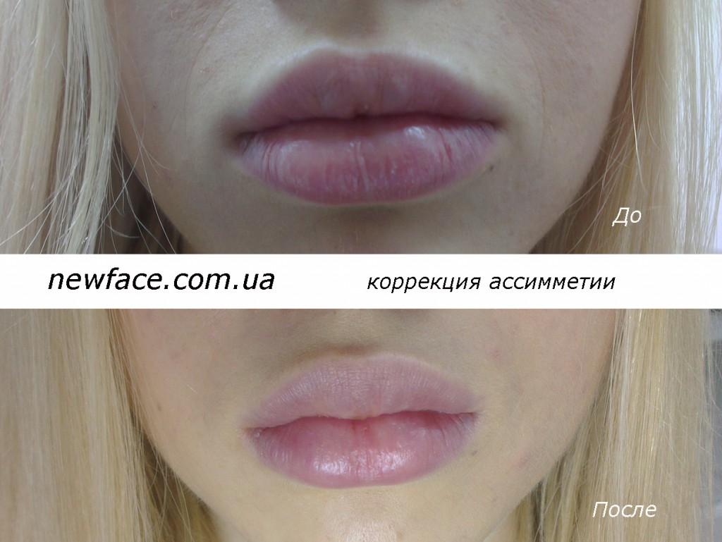 lips0834