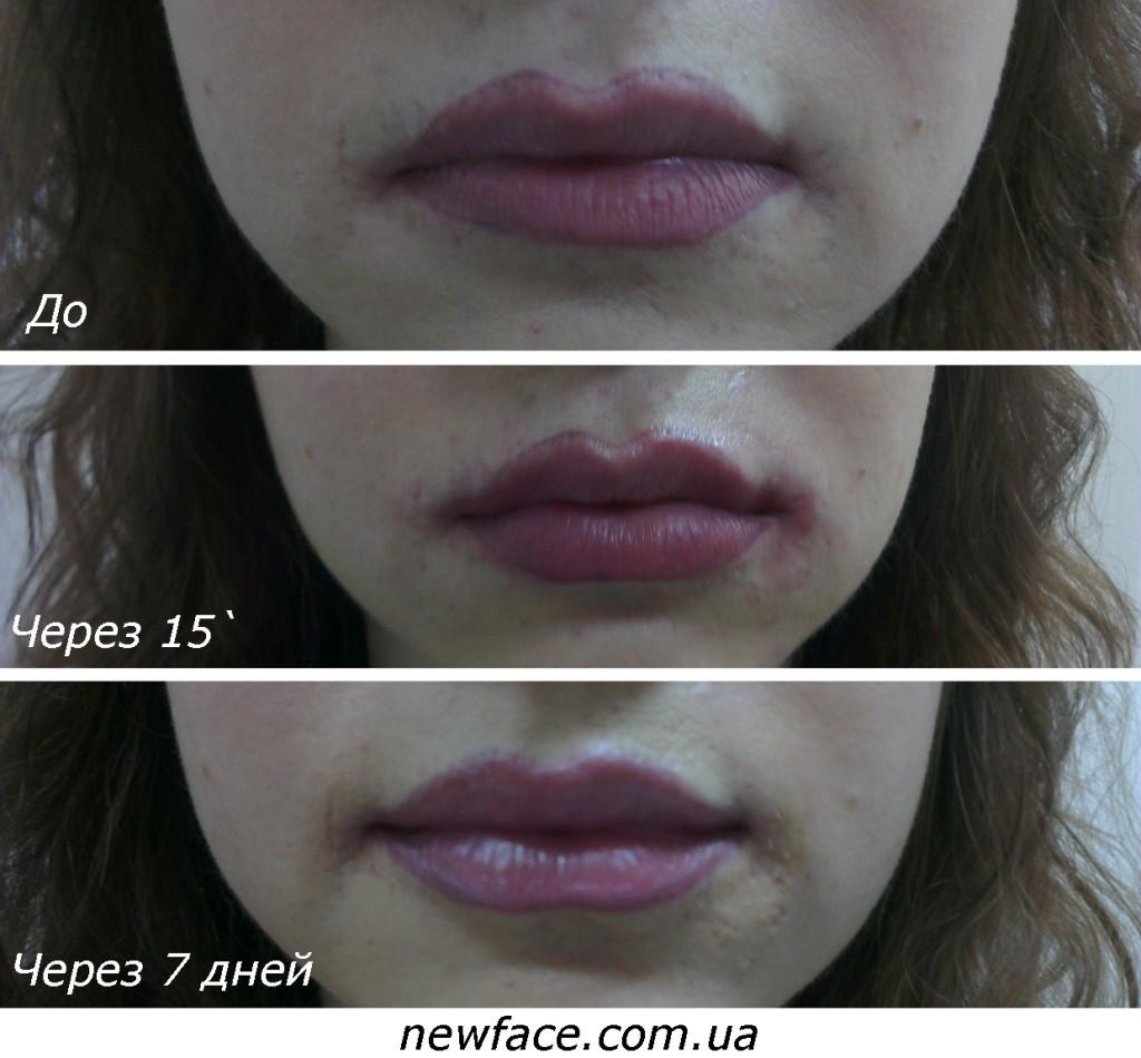 lips1998