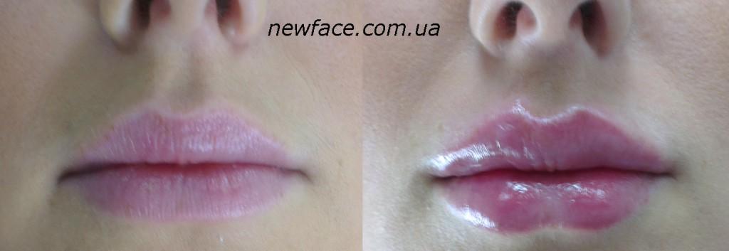 lips33