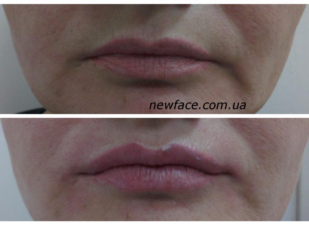 lips566